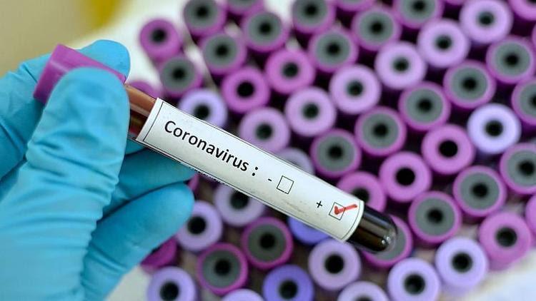 Día 181: con 175 contagios y 182 personas recuperadas de COVID